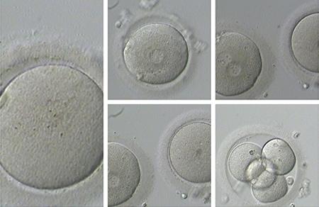 Preservación de la fertilidad: un tema de actualidad