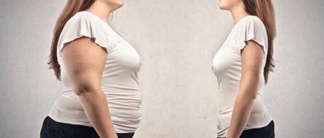 Obesidad-femenina
