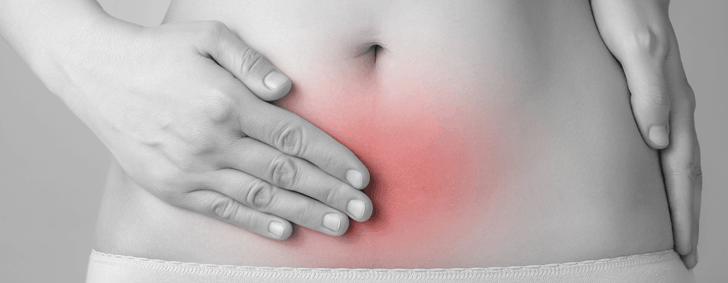 endometriosis-fertilidad